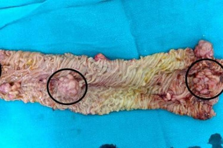 Resected segment of jejunum showing multiple polyps