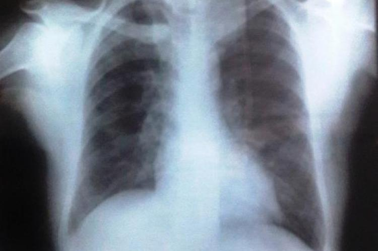 X-ray chest –PA view