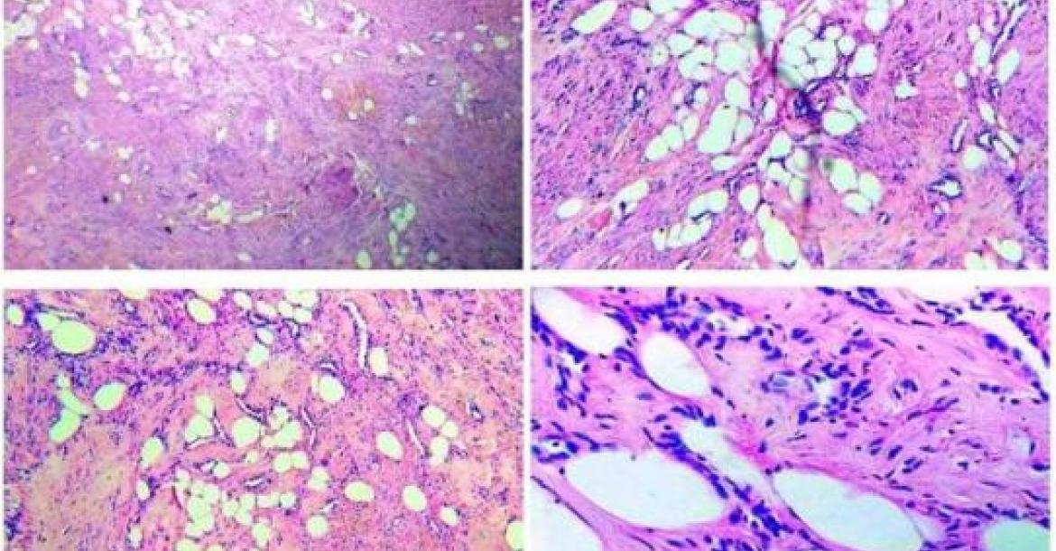 Admixture of smooth muscle cells and adipocytes on histology