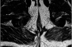 MRI scan 3-years post CRT treatment (axial view).